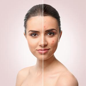 how-to-get-rid-of-blemishes