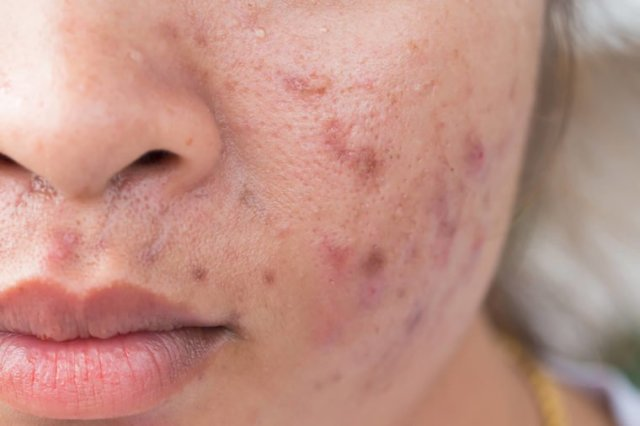 "Research-Says-This-One-""Healthy""-Food-Could-Be-Causing-Your-Acne_459808480_frank60-760x506"